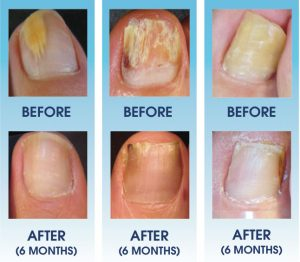 nail-fungus-infection