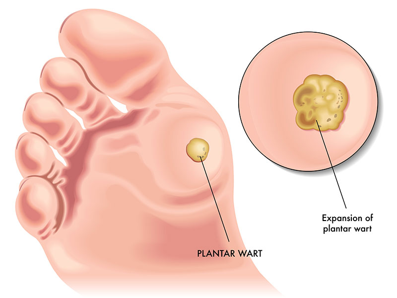 plantar warts risk factors symptoms causes treatment Diagram of Plantar Wart plantar warts risk factors \u2013 symptoms \u2013 causes \u2013 treatment